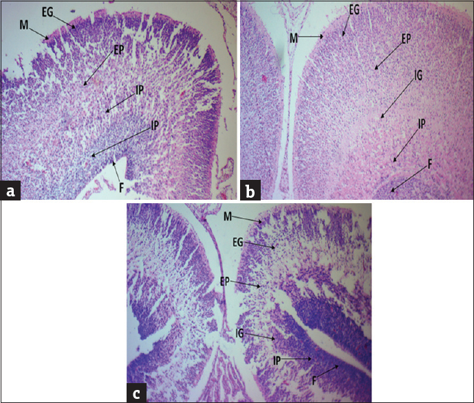 Figure 1: Histology of cerebral frontal lobe tissue: Photomicrograph sections of litters of young.aged (a), mid.aged (b), and old aged (c) Wistar rats showing the cytoarchitecture of the cerebral frontal lobes (M: Molecular, EG: External granular, EP: External pyramidal, IG: Internal granular, IP: Internal pyramidal, F layers: Fusiform) using hematoxylin and eosin stain, ×100